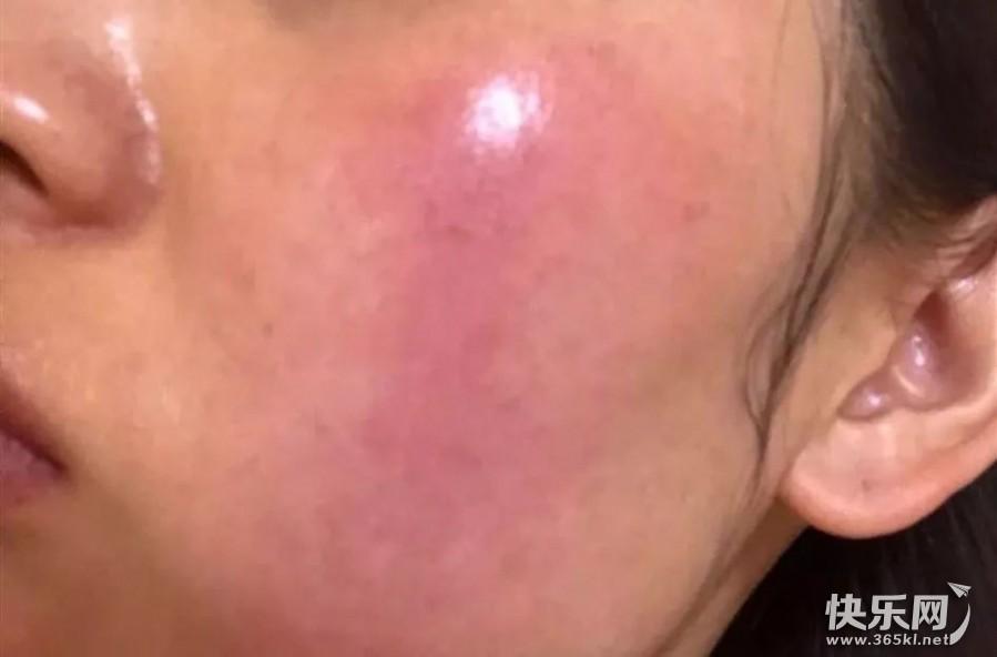 玫瑰痤疮导致面部发红,心悦护肤老师教你该怎么选护肤品和化妆品?